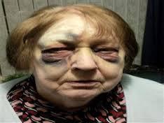 امرأه مسنه بسبب نصيحتها تعرضت للضرب
