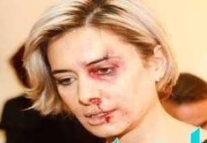 بالصورة.. الاعلامية كارين سلامة تتعرض للضرب المبرح من زوجها