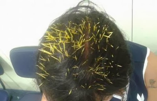 بالصور: 272 إبرة قنفذ تغرز في رأس إمرأة عجوز