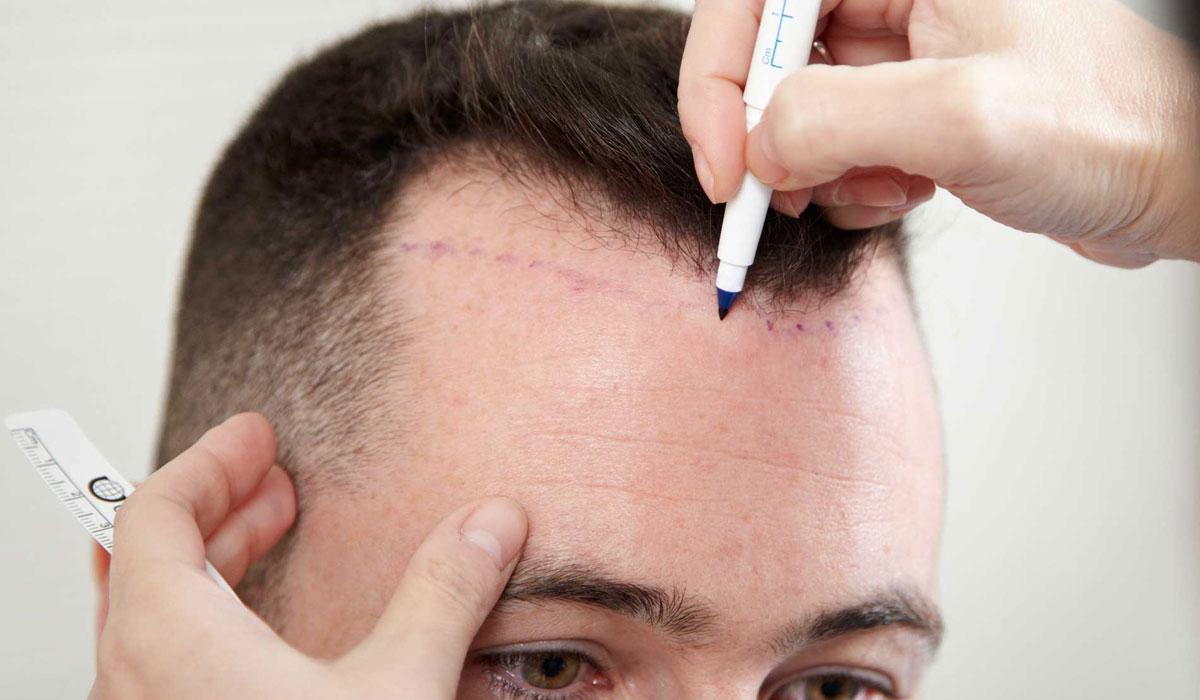 إمكانية إجراء عملية زراعة الشعر بدون حلاقة